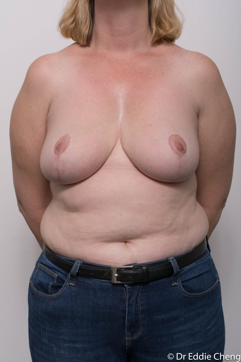breast-reduction-post-op-4-months-6-800x1200