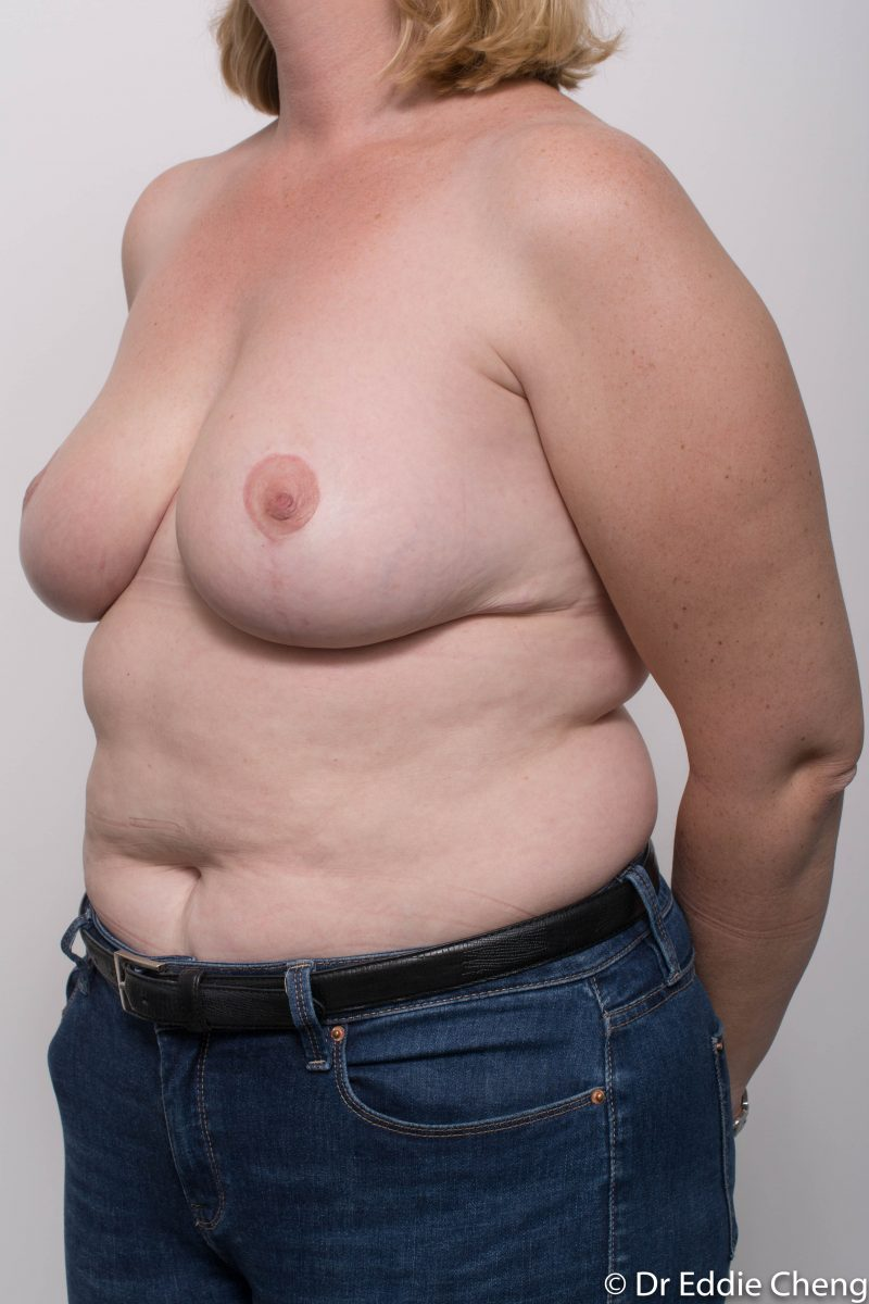 breast-reduction-post-op-4-months-7-800x1200