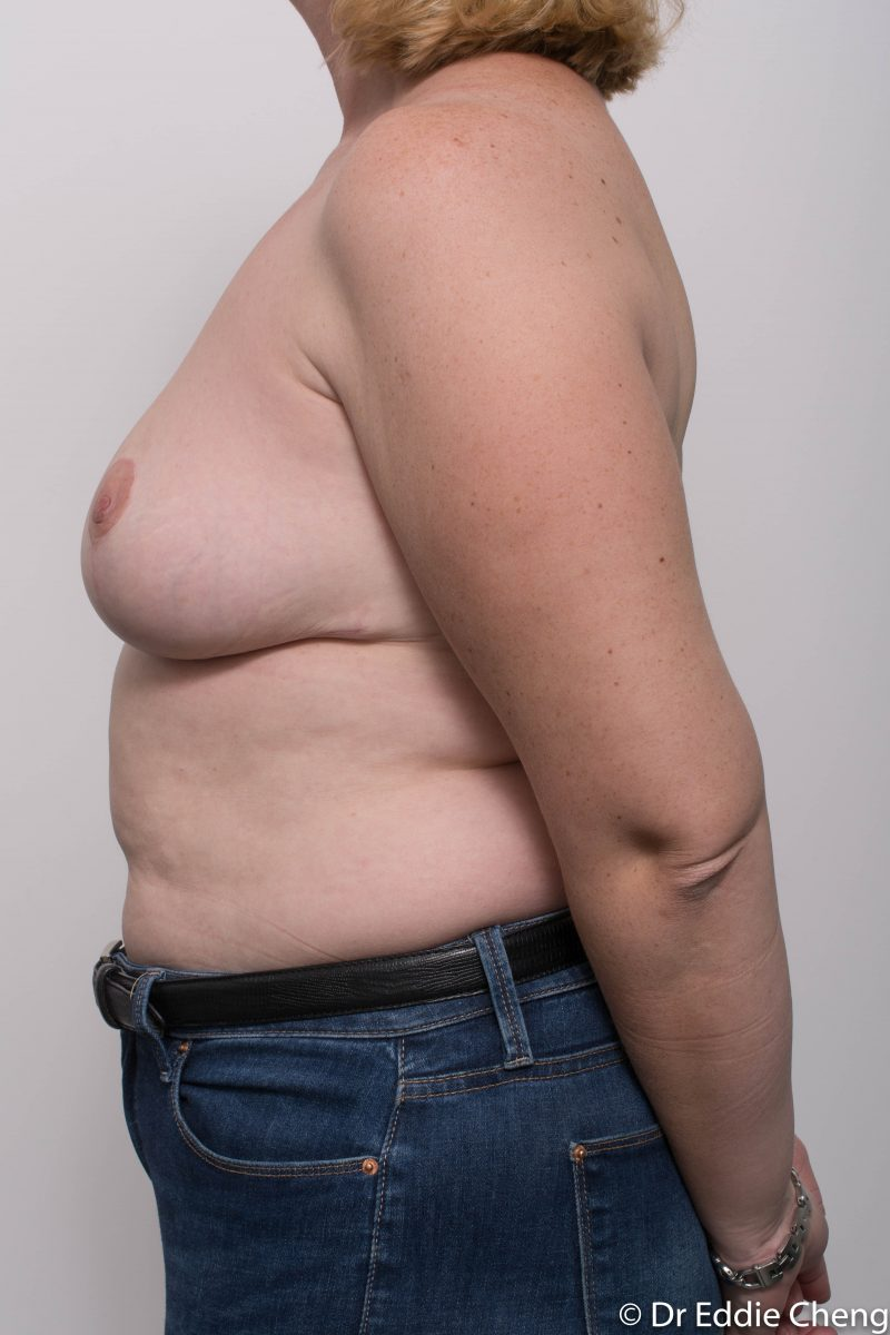 breast-reduction-post-op-4-months-8-800x1200