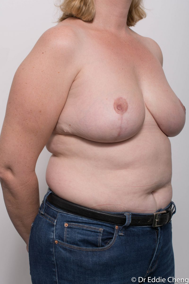 breast-reduction-post-op-4-months-9-800x1200