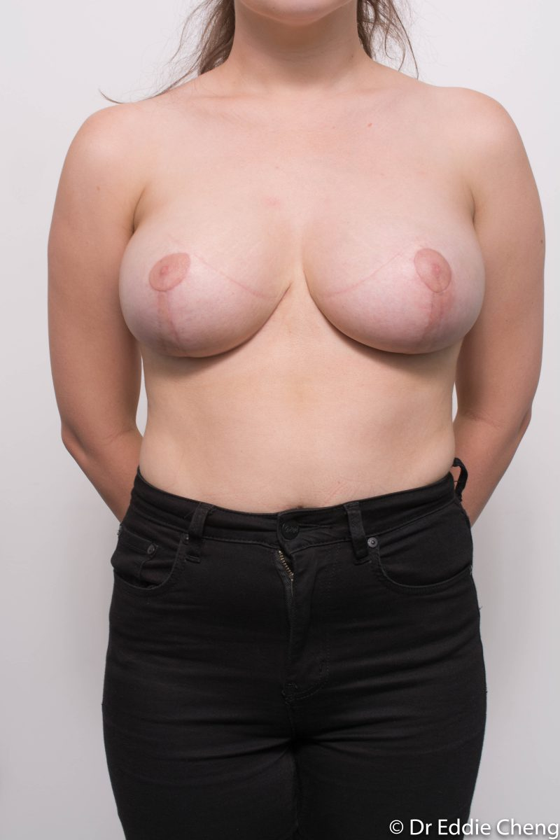 breast-reduction-post-op-6-weeks-6-52-1-800x1200