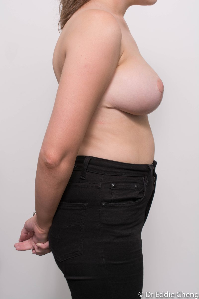 breast-reduction-post-op-6-weeks-6-52-4-800x1200