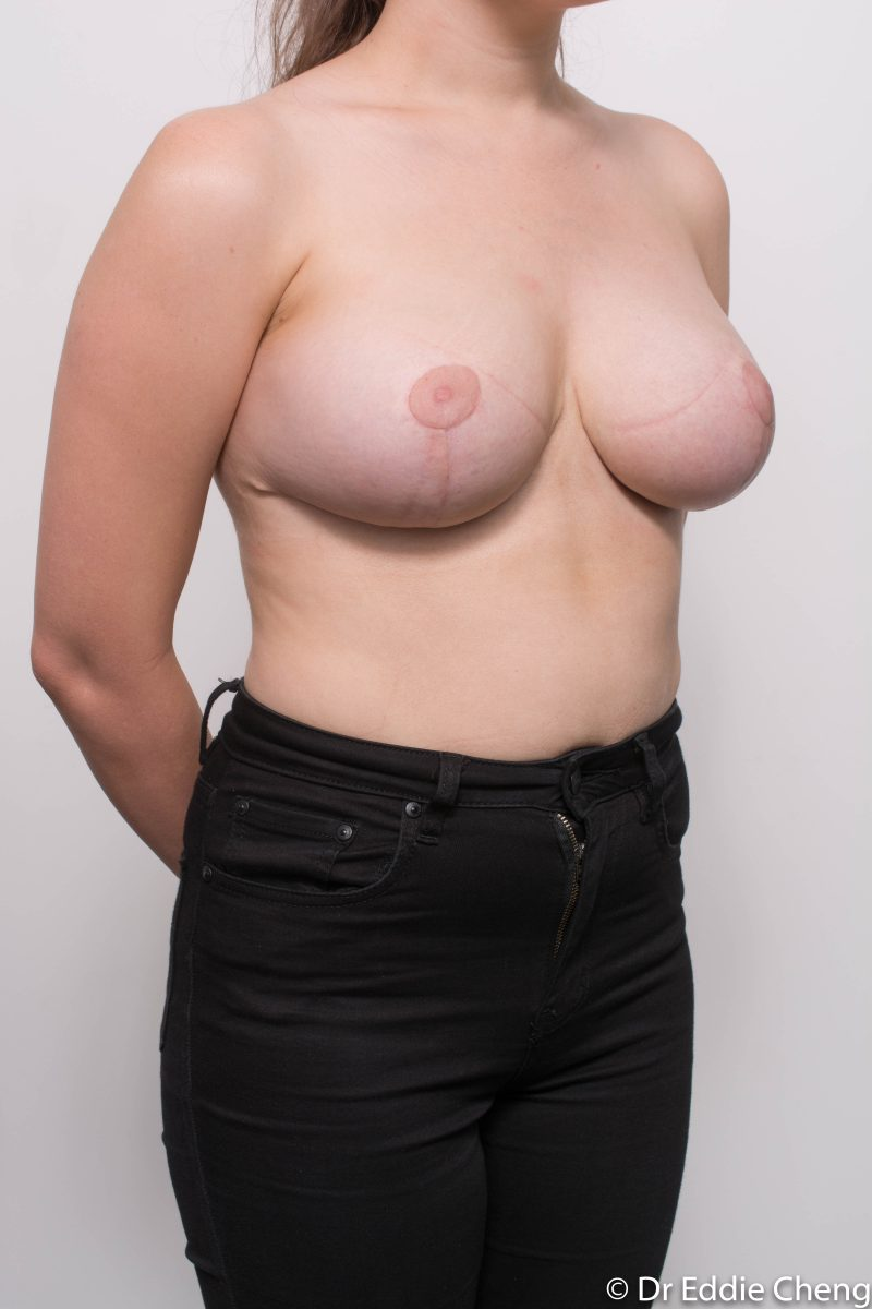 breast-reduction-post-op-6-weeks-6-52-5-800x1200