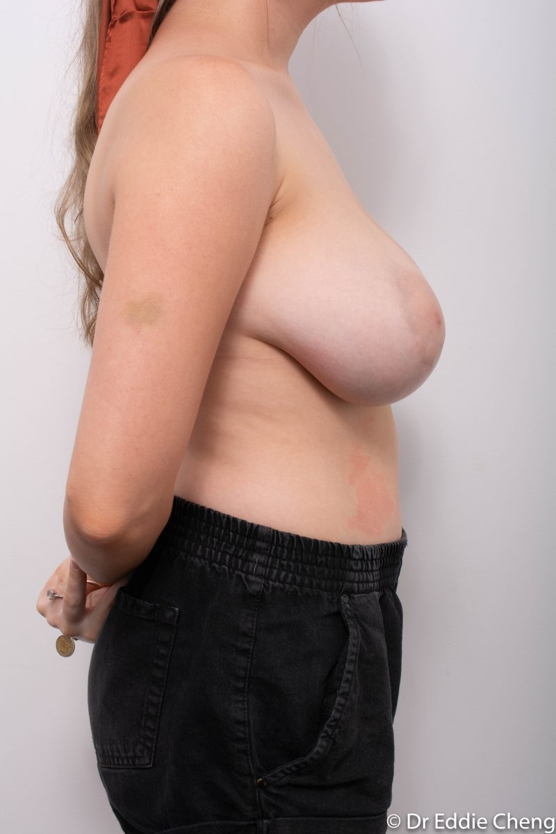 breast-reduction-pre-op-1-800x1200