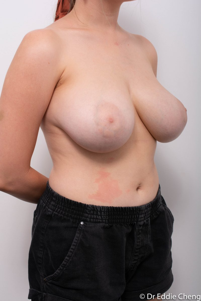 breast-reduction-pre-op-2-800x1200
