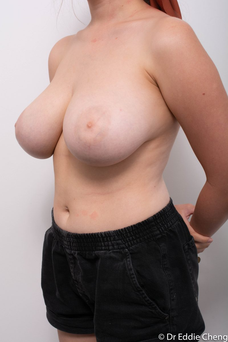 breast-reduction-pre-op-4-800x1200