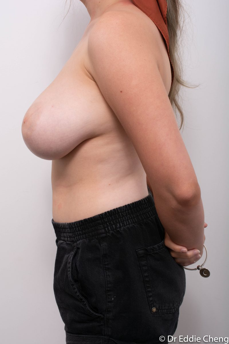 breast-reduction-pre-op-5-800x1200
