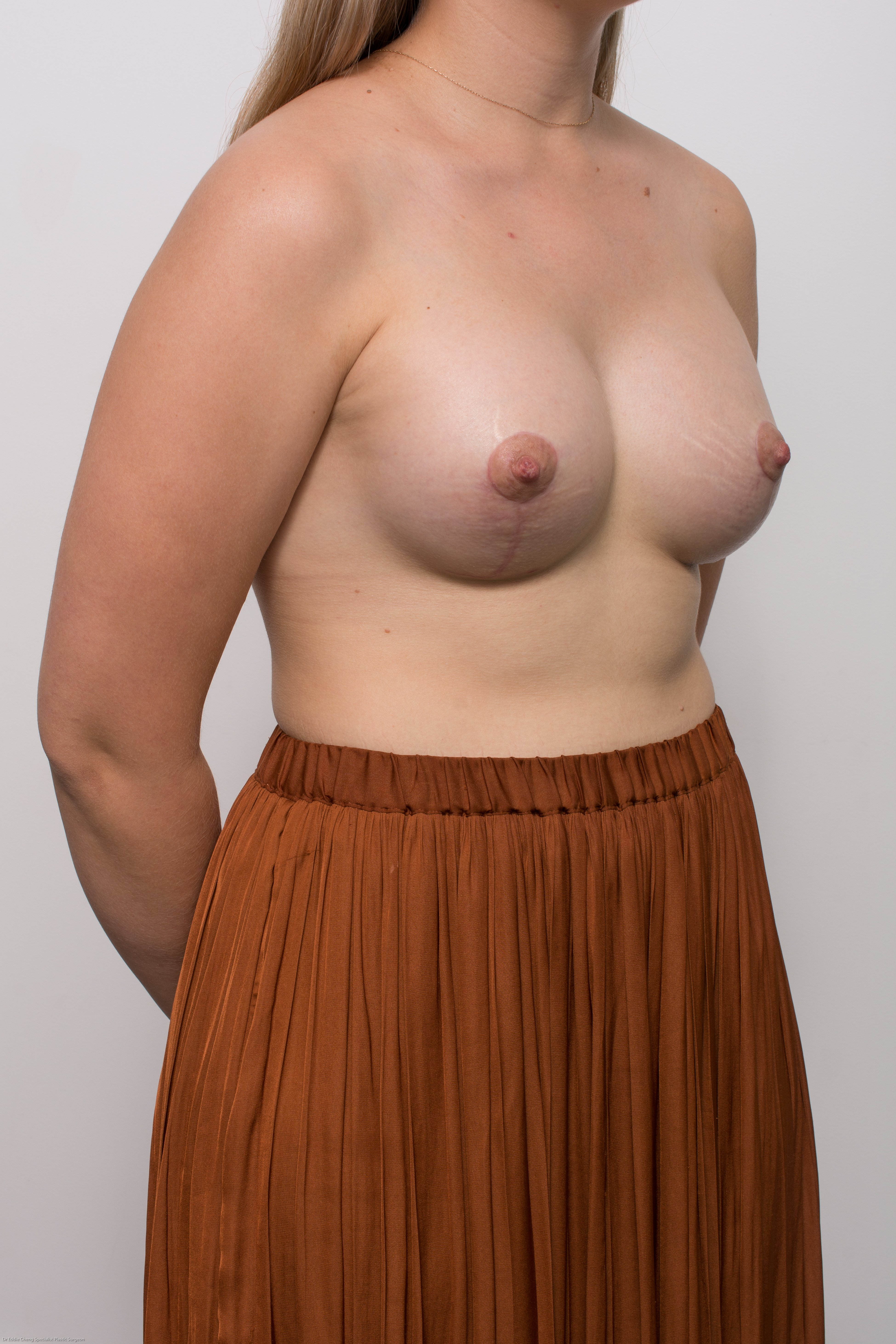 correction of tuberous breasts (3 of 7)