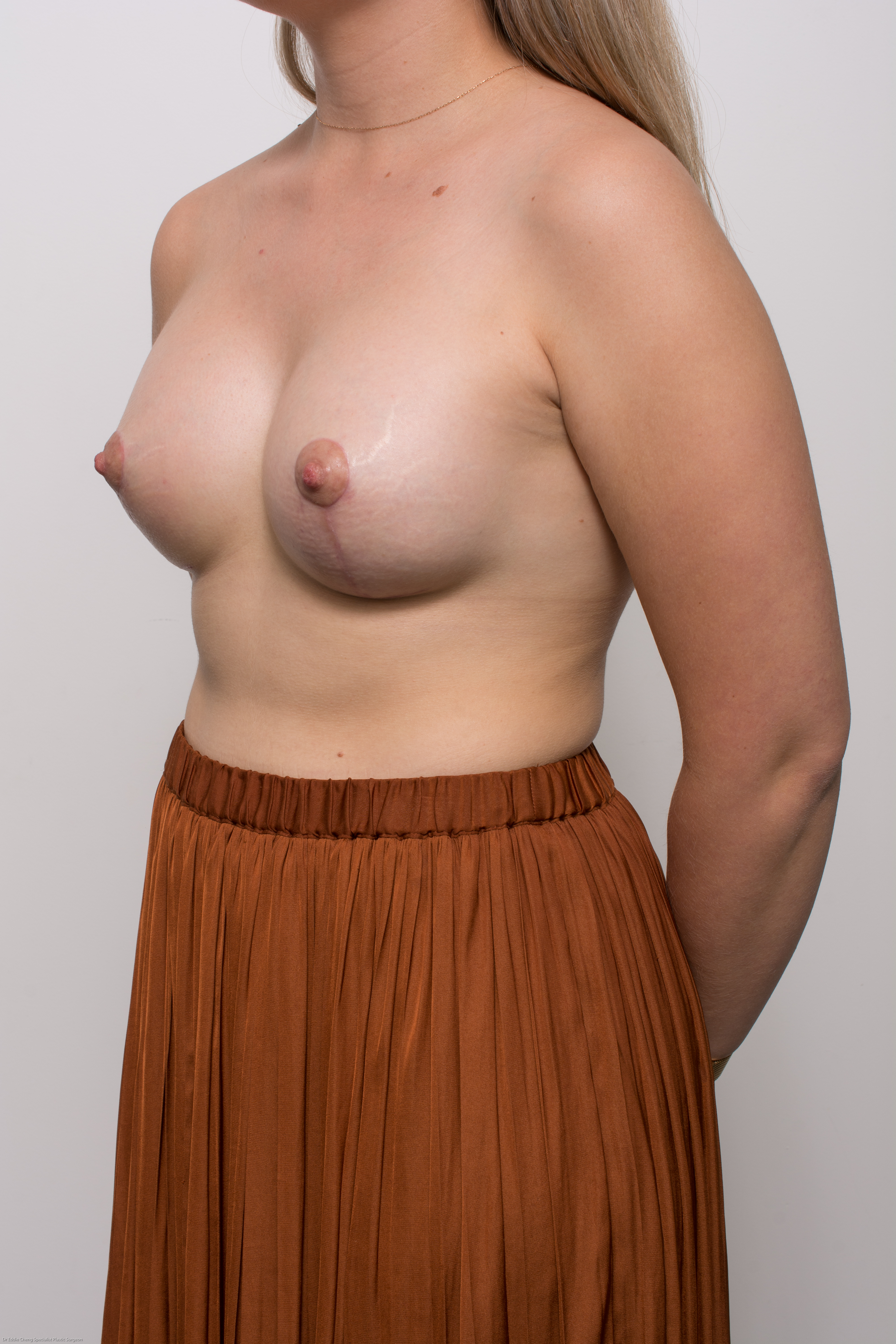 correction of tuberous breasts (4 of 7)
