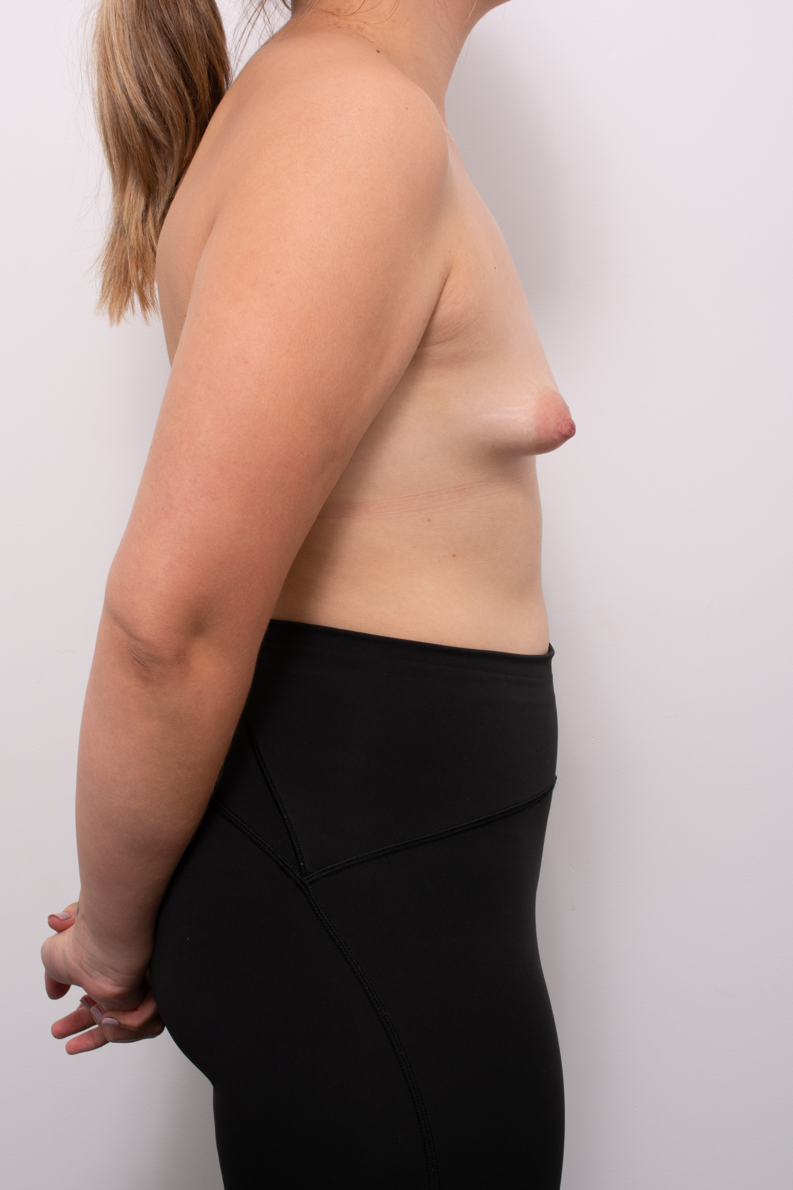 correction of tuberous breasts (5 of 7)