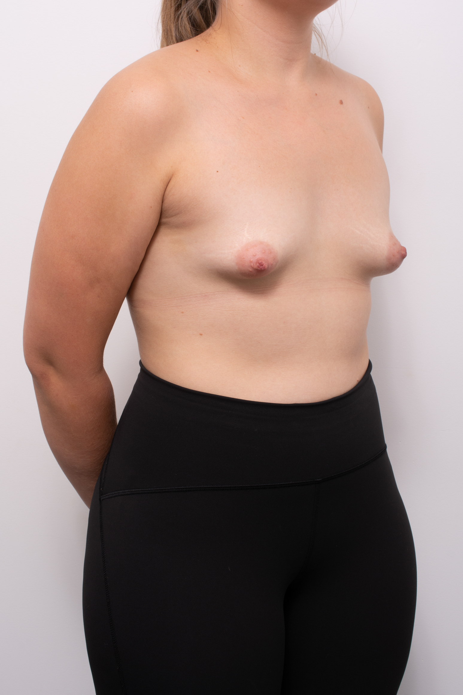 correction of tuberous breasts (6 of 7)