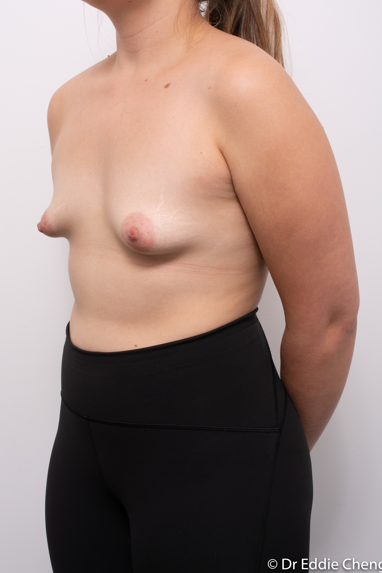 correction of tuberous breasts (7 of 7)