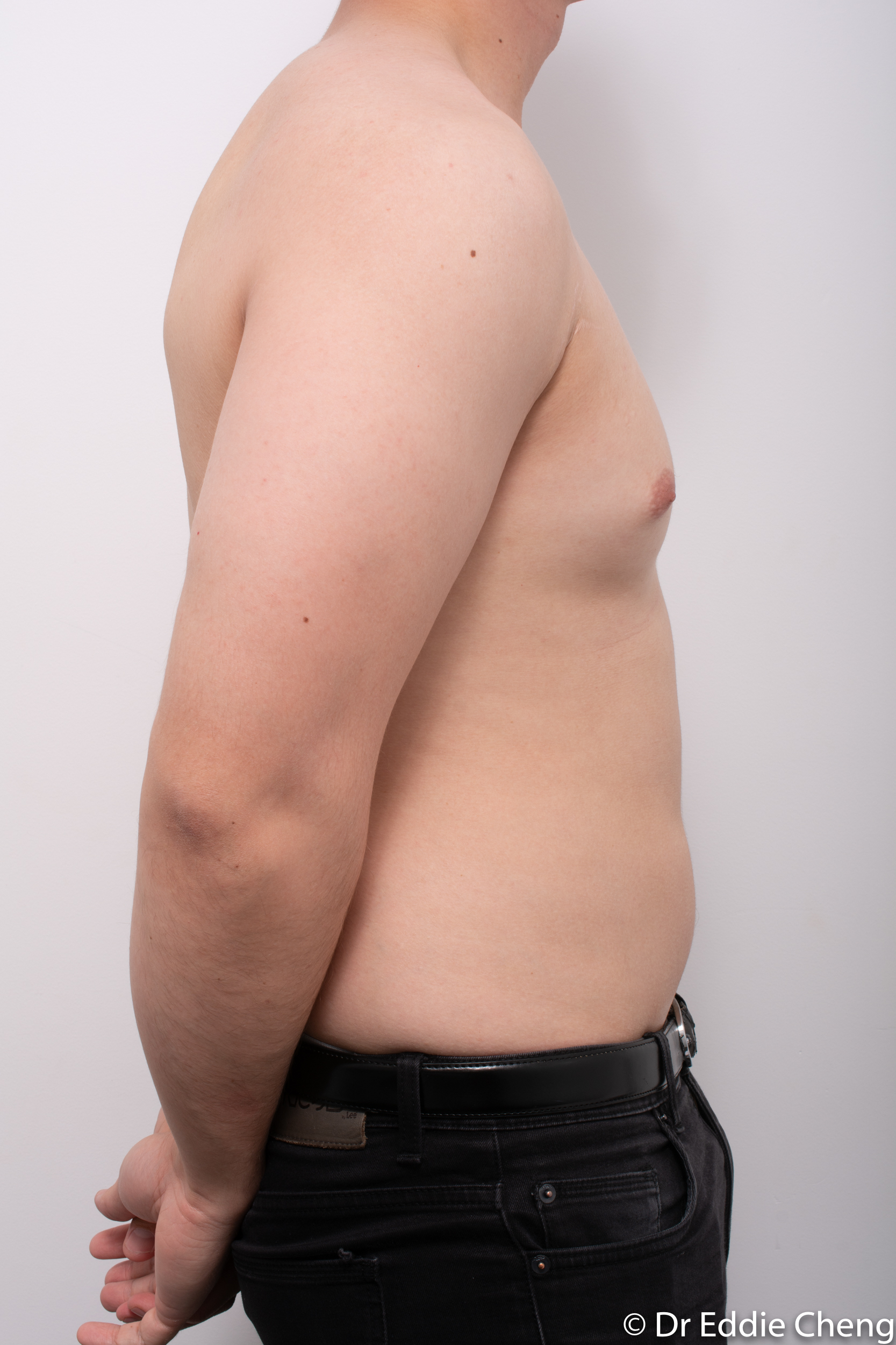 gynaecomastia dr eddie cheng brisbane pre and post op -1