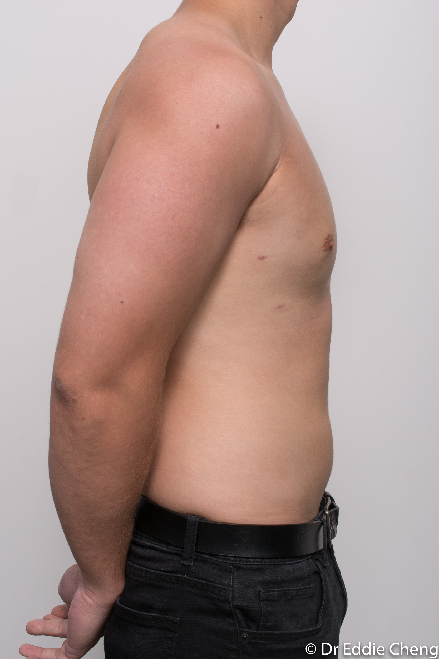 gynaecomastia dr eddie cheng brisbane pre and post op -10
