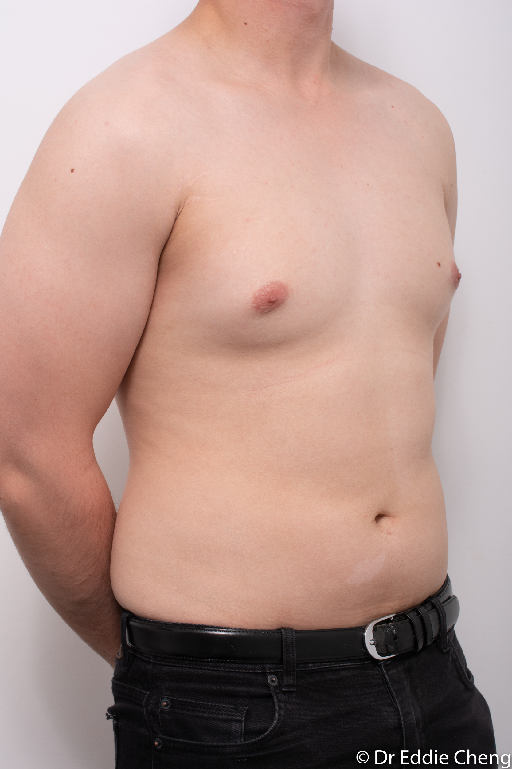 gynaecomastia dr eddie cheng brisbane pre and post op -2