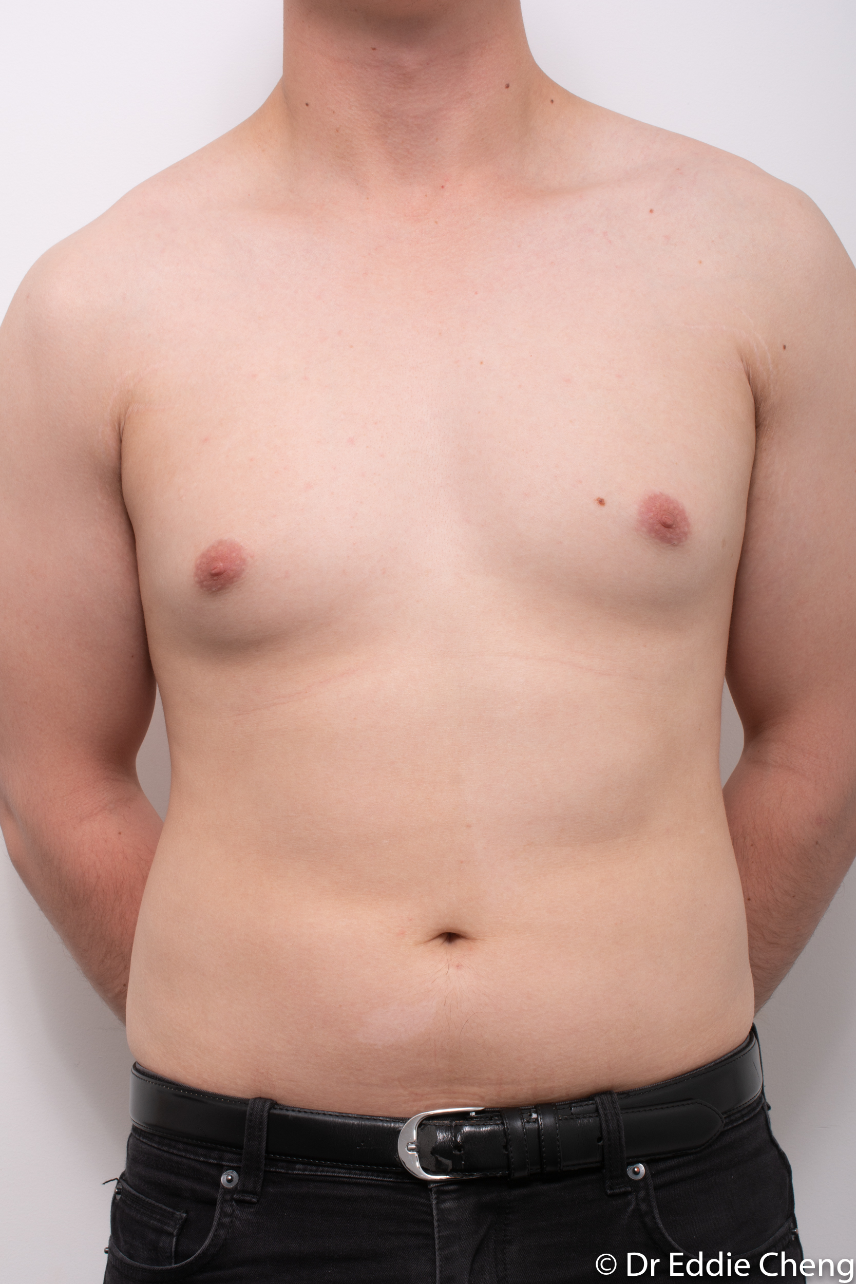 gynaecomastia dr eddie cheng brisbane pre and post op -3