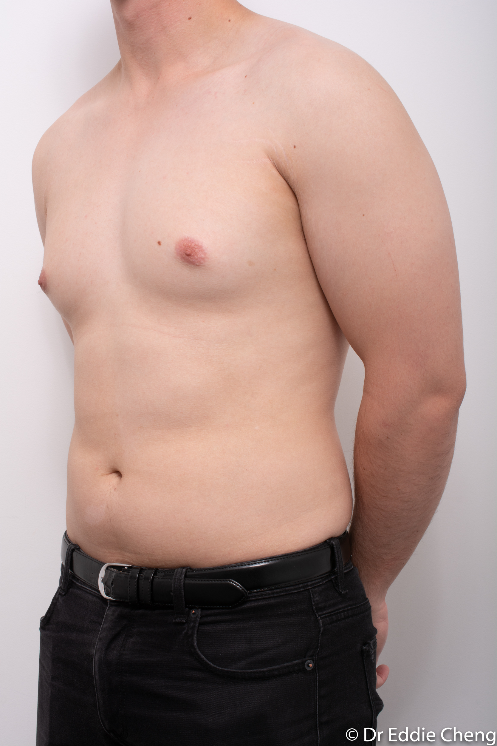 gynaecomastia dr eddie cheng brisbane pre and post op -4
