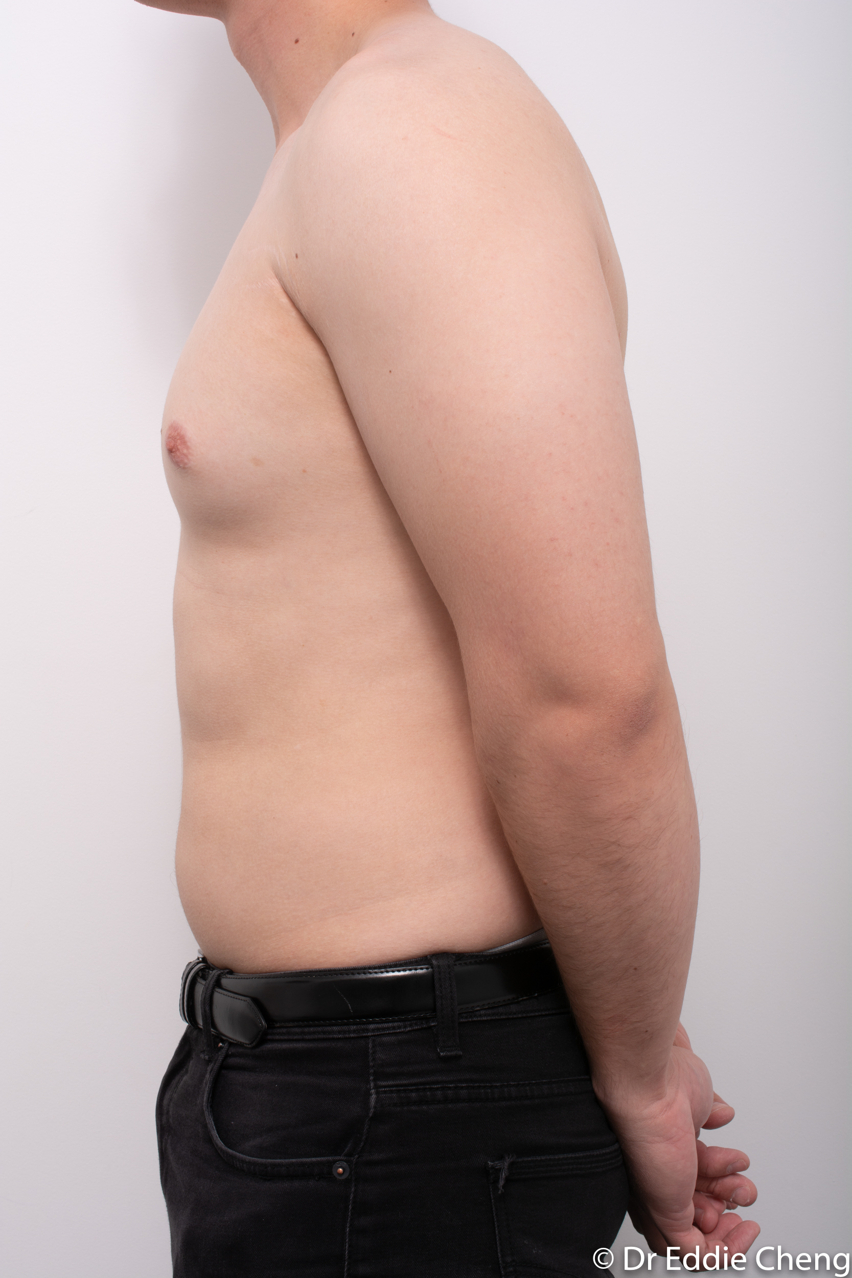 gynaecomastia dr eddie cheng brisbane pre and post op -5