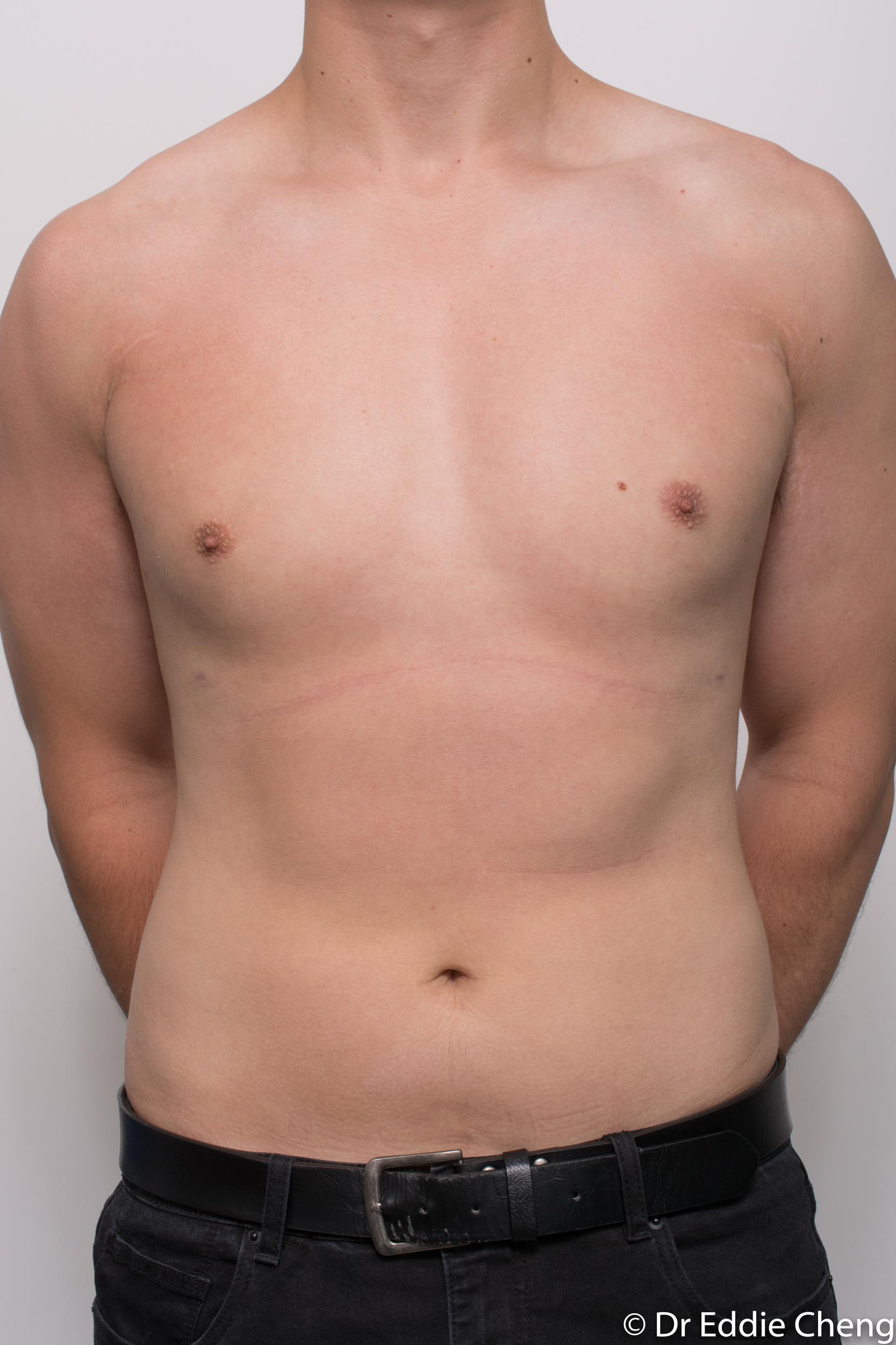 gynaecomastia dr eddie cheng brisbane pre and post op -6