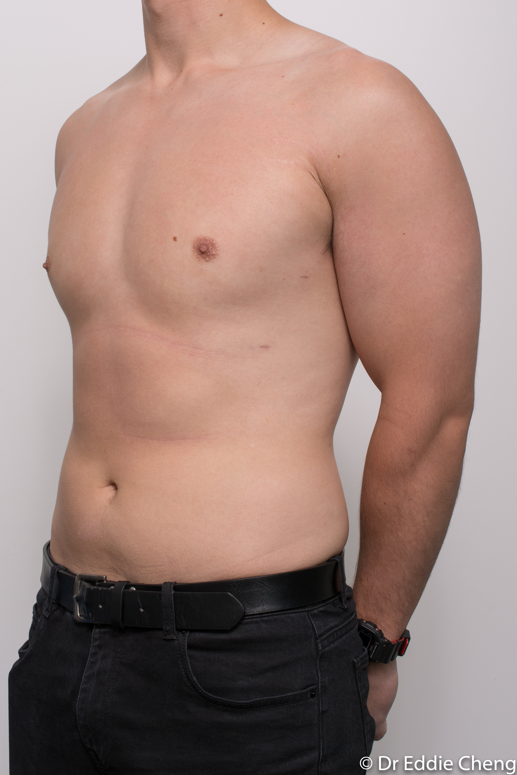 gynaecomastia dr eddie cheng brisbane pre and post op -7