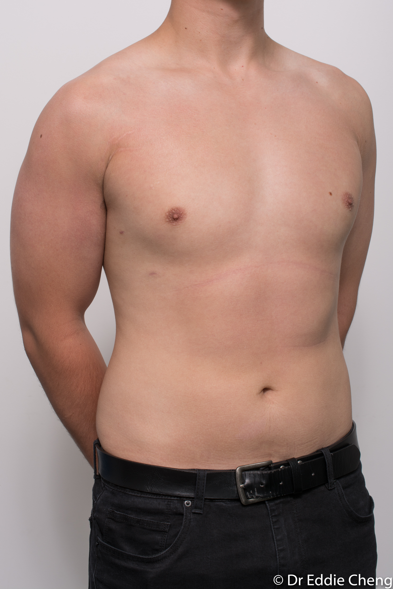 gynaecomastia dr eddie cheng brisbane pre and post op -9