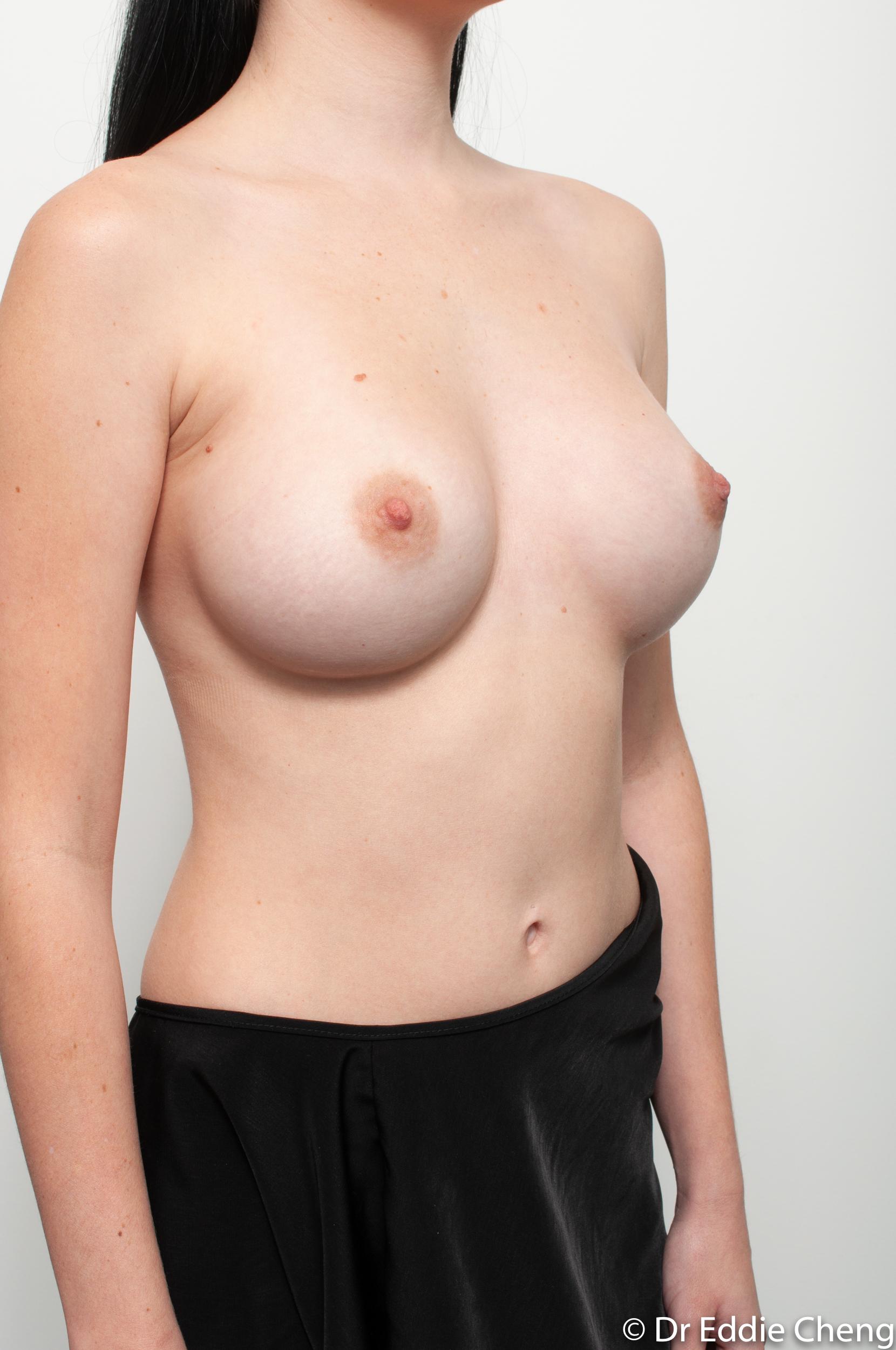 implant revision size change dr eddie cheng brisbane-2