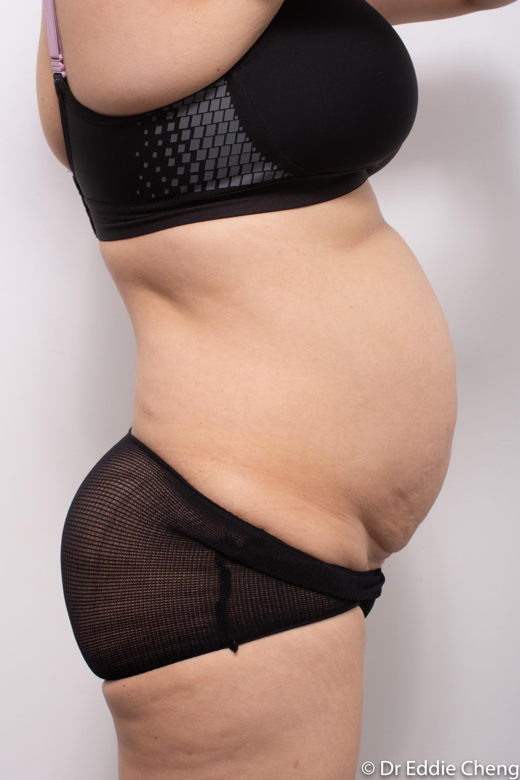 post abdominoplasty dr eddie cheng brisbane-1