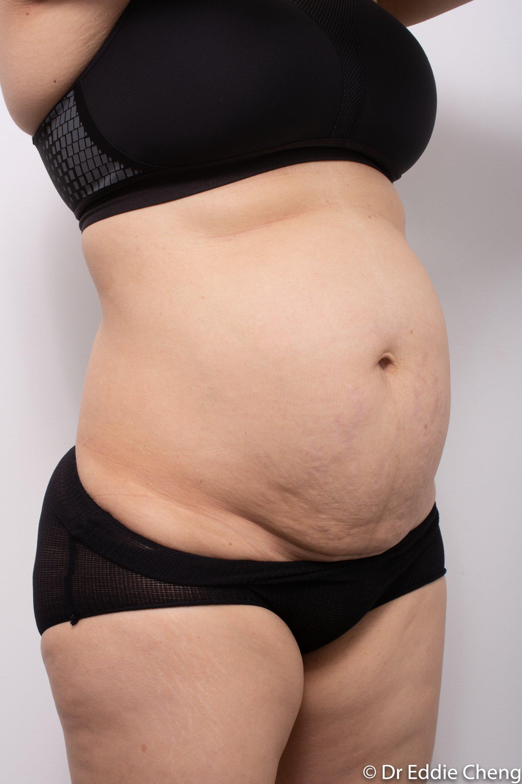 post abdominoplasty dr eddie cheng brisbane-2