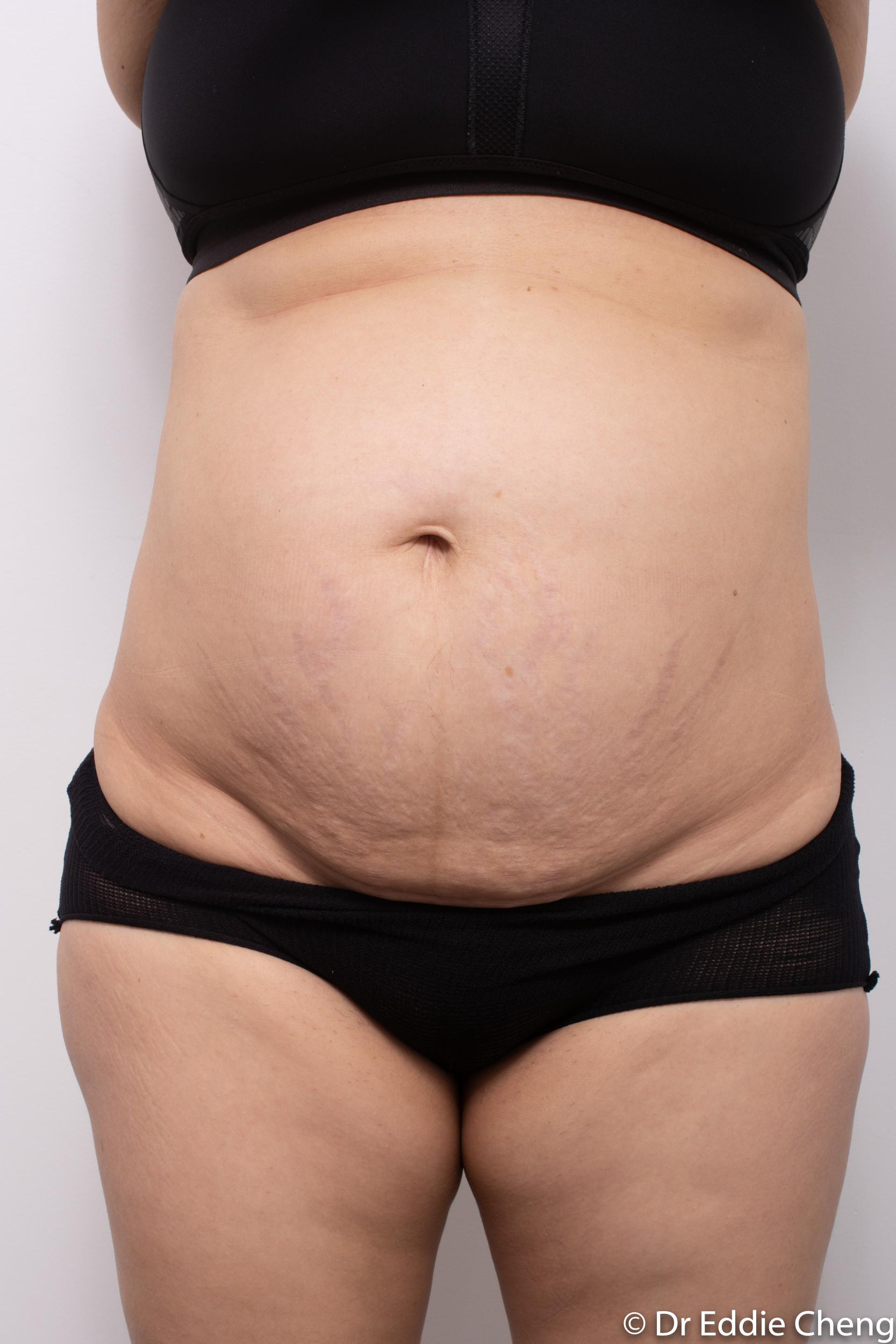 post abdominoplasty dr eddie cheng brisbane-3