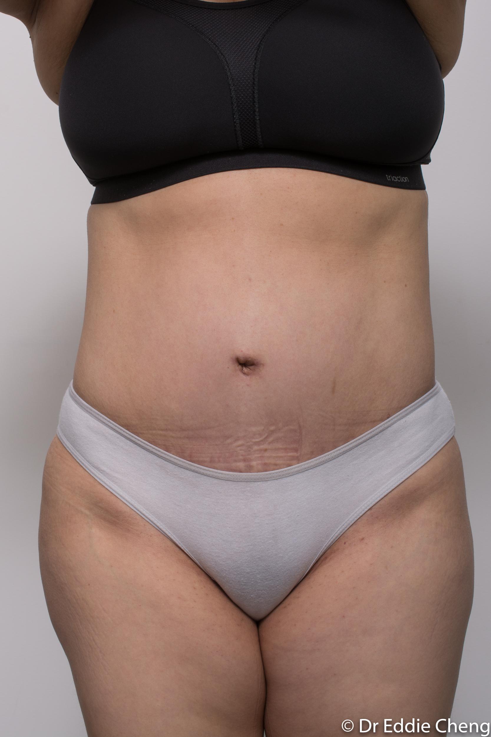 post abdominoplasty dr eddie cheng brisbane-4