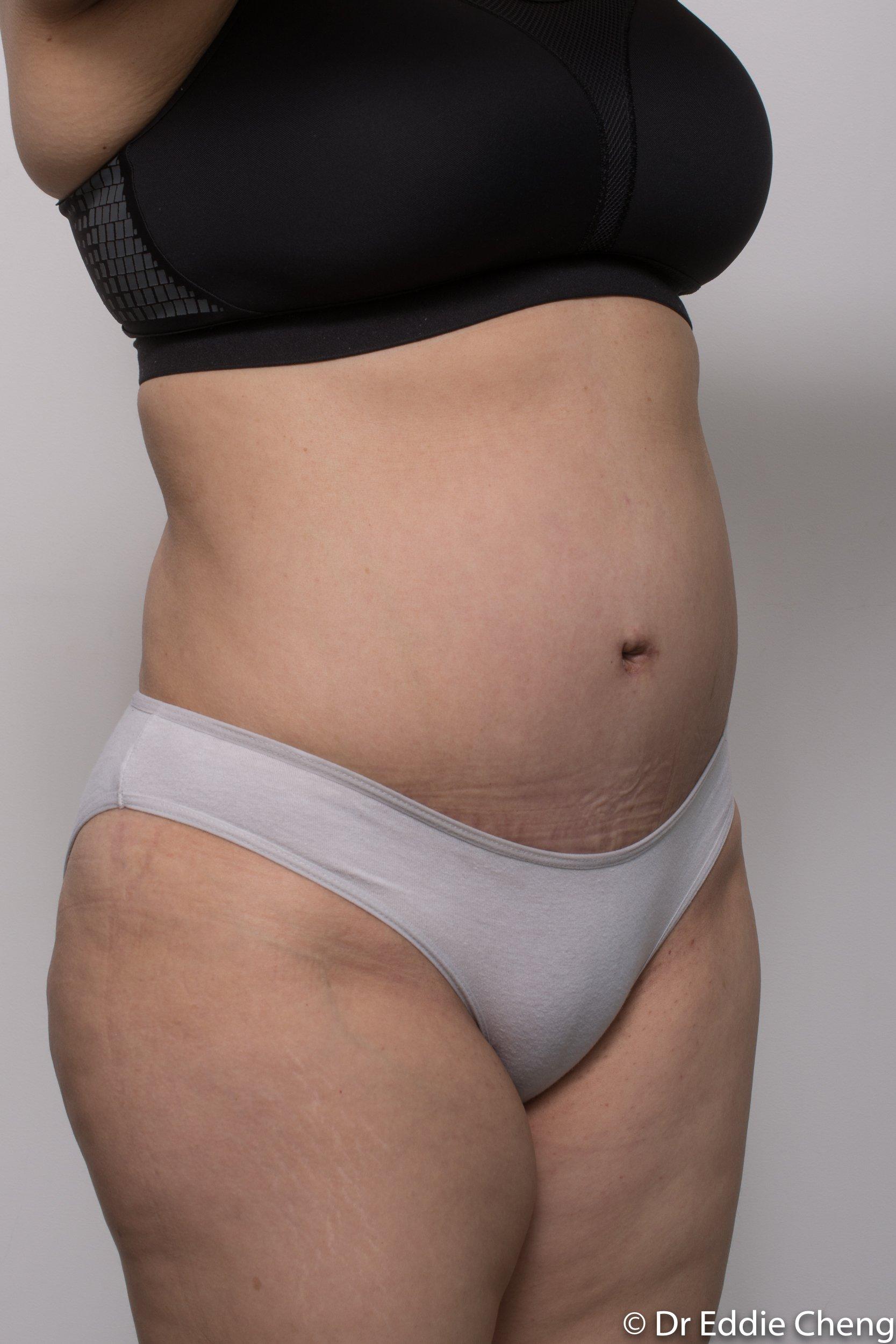 post abdominoplasty dr eddie cheng brisbane-5