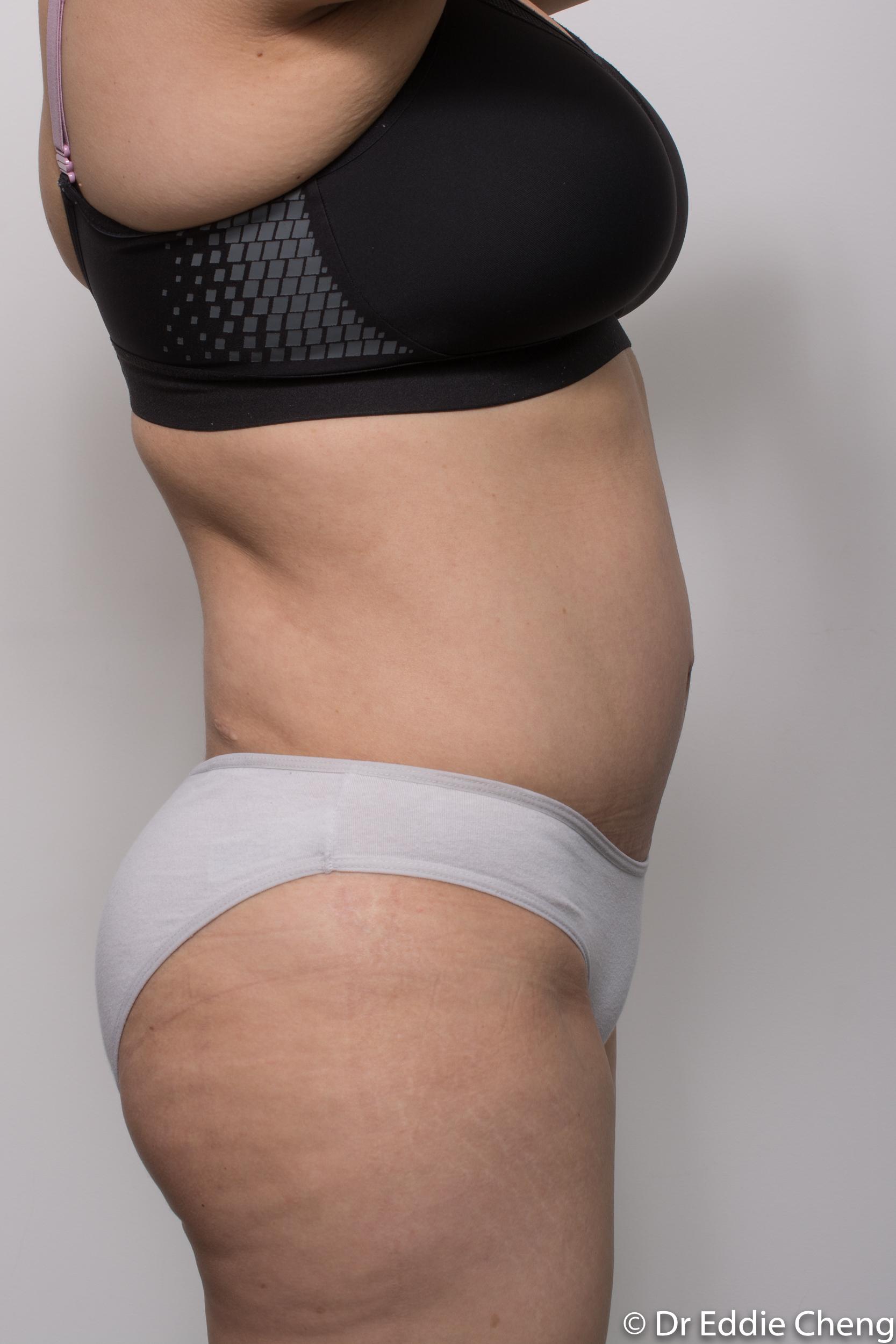 post abdominoplasty dr eddie cheng brisbane-6