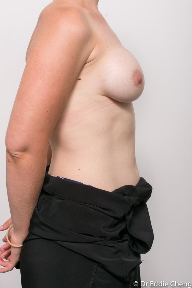 post breast augmentation dr eddie cheng brisbane (1 of 3)