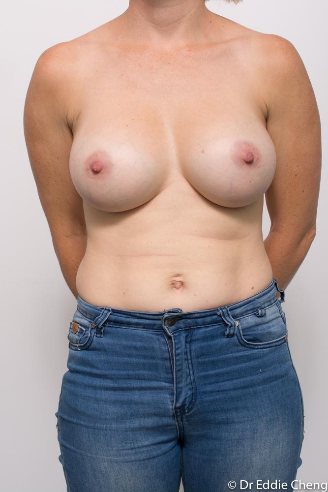 post breast augmentation dr eddie cheng brisbane (1 of 5)