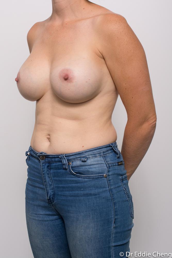 post breast augmentation dr eddie cheng brisbane (2 of 5)