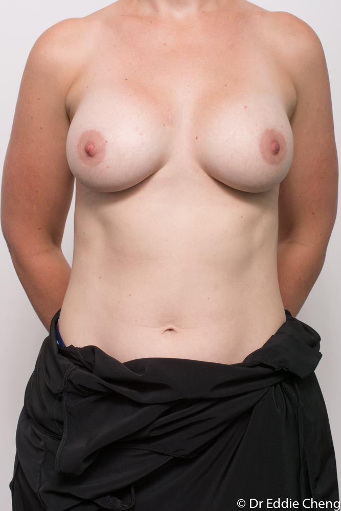 post breast augmentation dr eddie cheng brisbane (3 of 3)