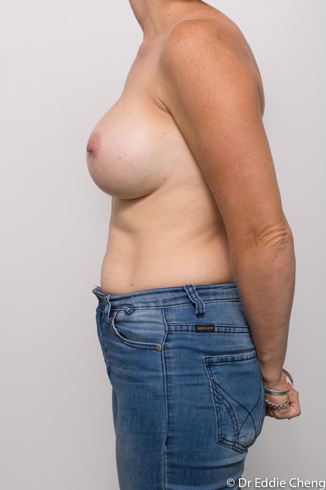 post breast augmentation dr eddie cheng brisbane (3 of 5)