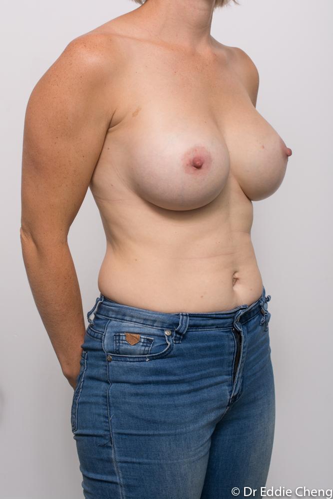 post breast augmentation dr eddie cheng brisbane (4 of 5)