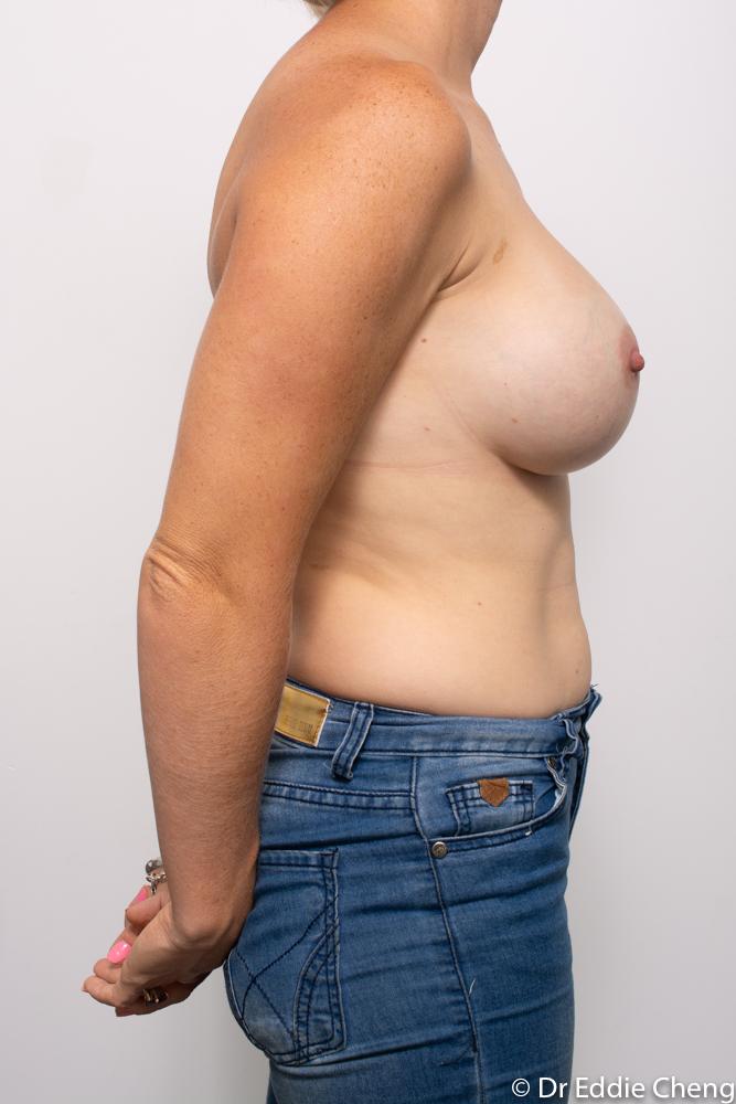 post breast augmentation dr eddie cheng brisbane (5 of 5)