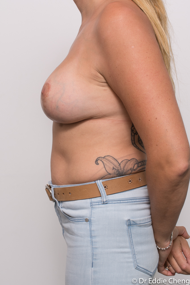 post breast lift and augmentation dr eddie cheng brisbane (1 of 3)