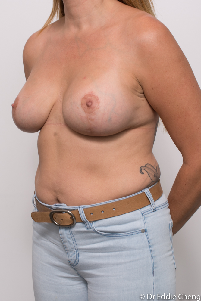 post breast lift and augmentation dr eddie cheng brisbane (2 of 3)