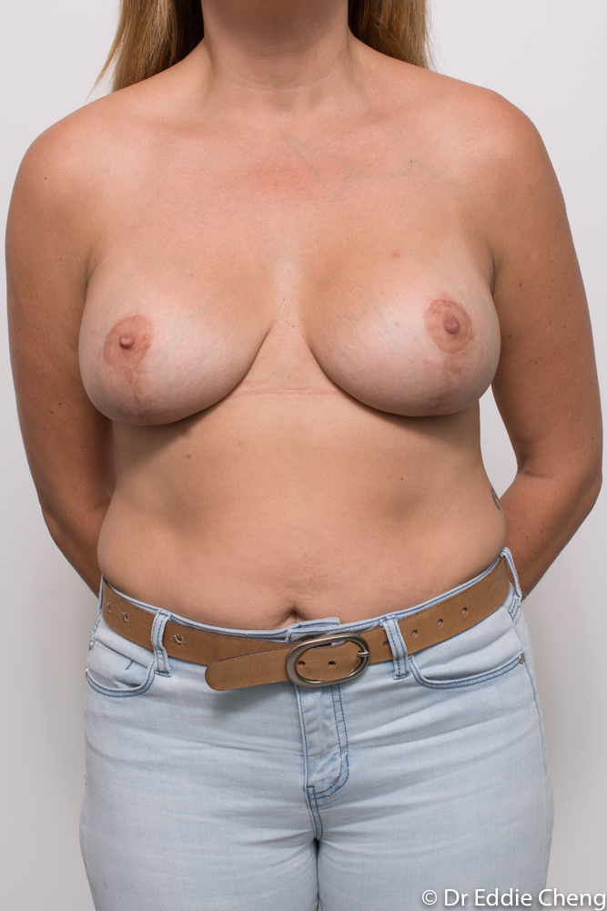 post breast lift and augmentation dr eddie cheng brisbane (3 of 3)