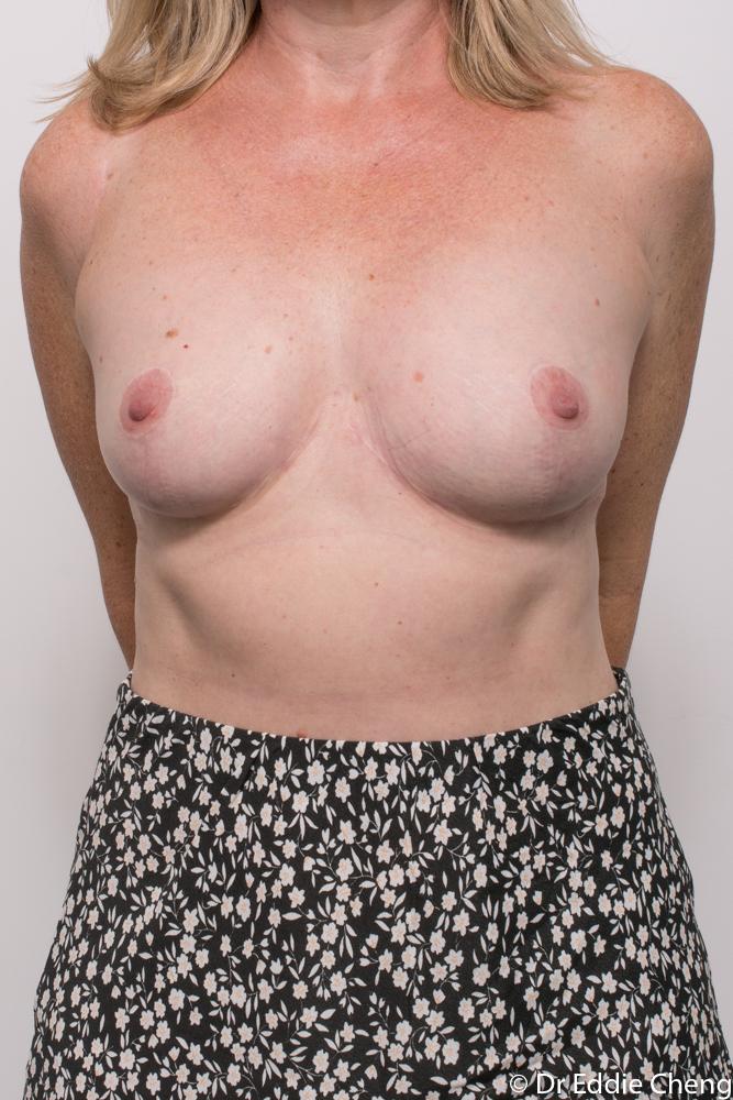 post breast reduction dr eddie cheng brisbane (1 of 5)