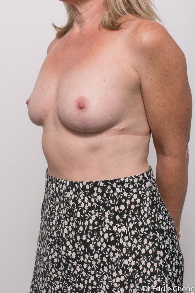 post breast reduction dr eddie cheng brisbane (2 of 5)
