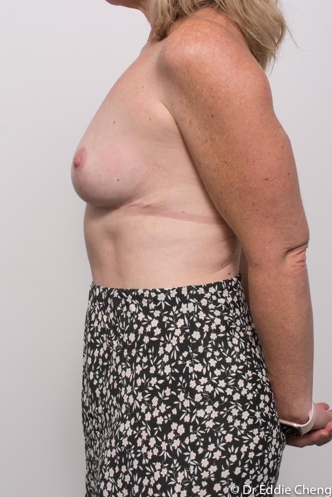 post breast reduction dr eddie cheng brisbane (3 of 5)