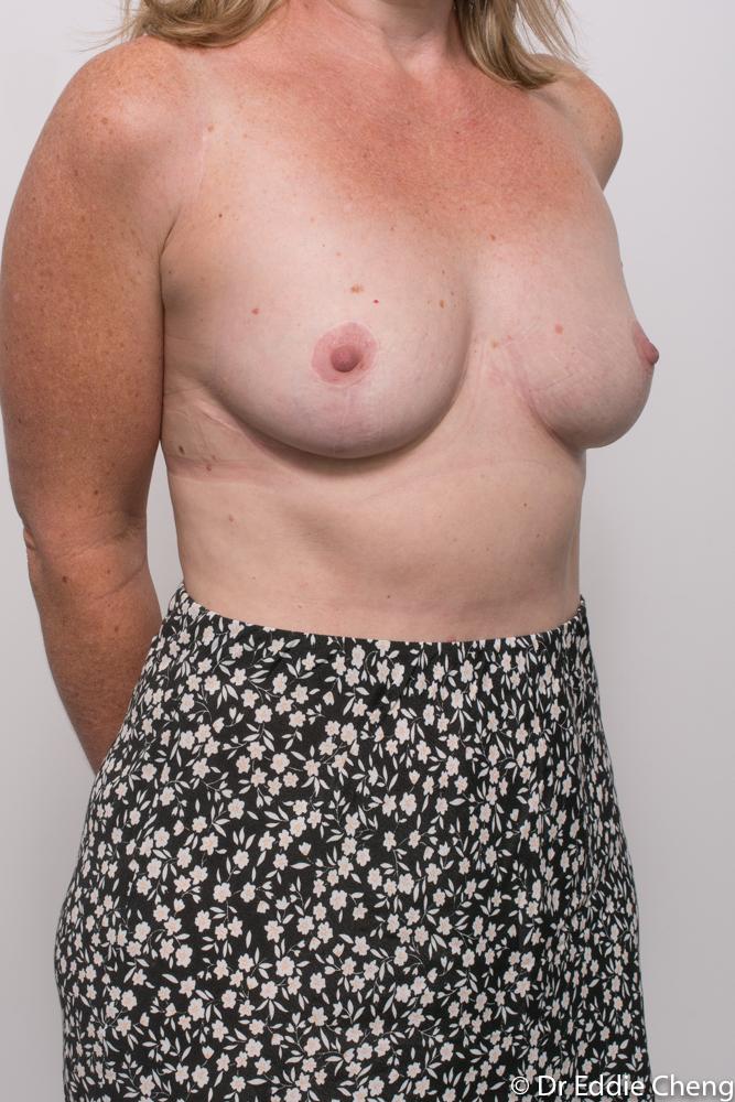 post breast reduction dr eddie cheng brisbane (4 of 5)