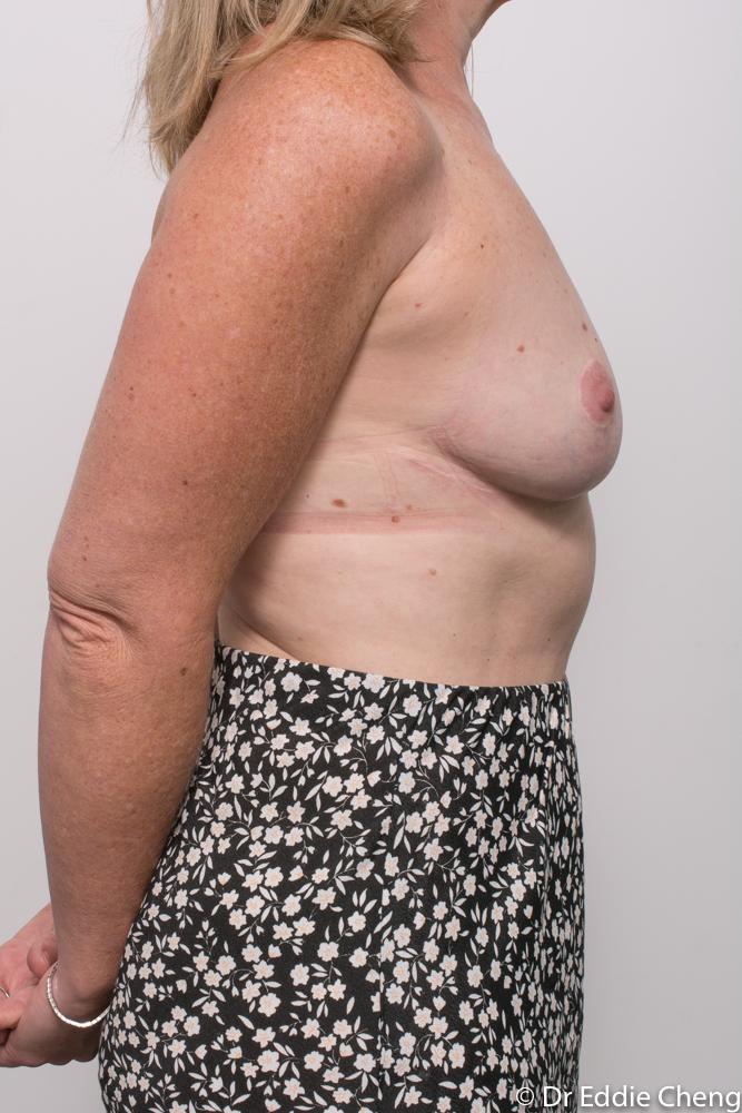 post breast reduction dr eddie cheng brisbane (5 of 5)