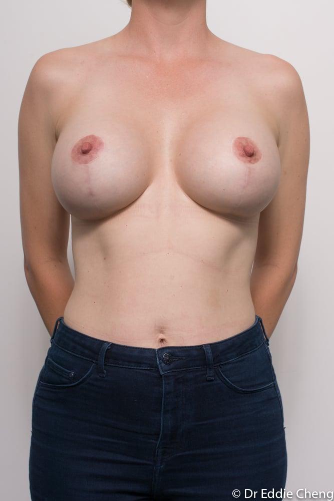 post op augmentation mastopexy dr eddie cheng brisband (3 of 5)
