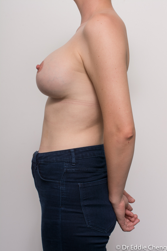 post op augmentation mastopexy dr eddie cheng brisband (5 of 5)