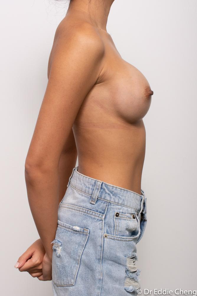 post op breast augmentation dr eddie cheng brisbane (1 of 5)